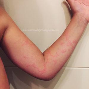 gonfiore, macchie e ponti pelle